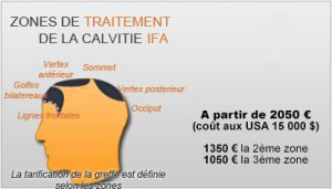 zone-calvitie